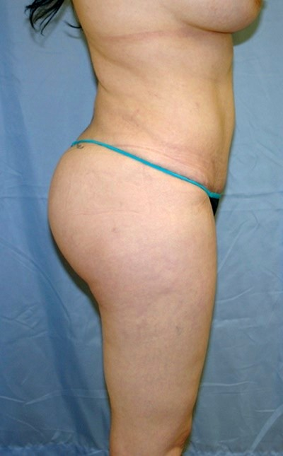 buttock-augmentation-brazilian-butt-lift-los-angeles-woman-after-side-dr-maan-kattash
