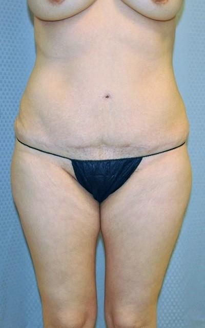 buttock-augmentation-brazilian-butt-lift-los-angeles-woman-before-front-dr-maan-kattash