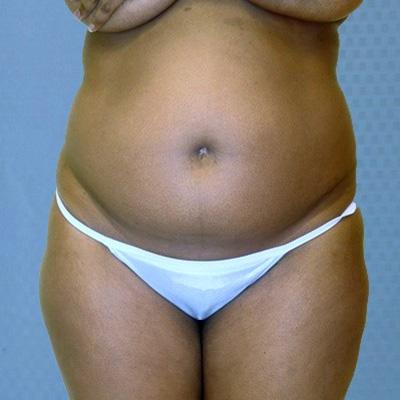buttock-augmentation-brazilian-butt-lift-rancho-cucamonga-woman-before-front-dr-maan-kattash
