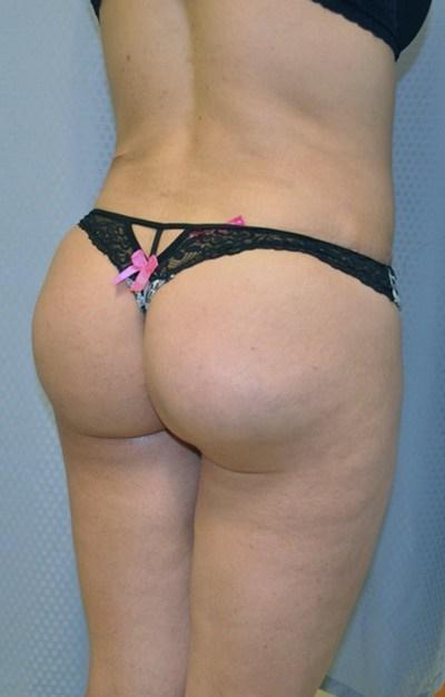 buttock-augmentation-brazilian-butt-lift-upland-woman-after-back-dr-maan-kattash
