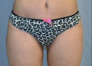 buttock-augmentation-brazilian-butt-lift-upland-woman-after-front-dr-maan-kattash