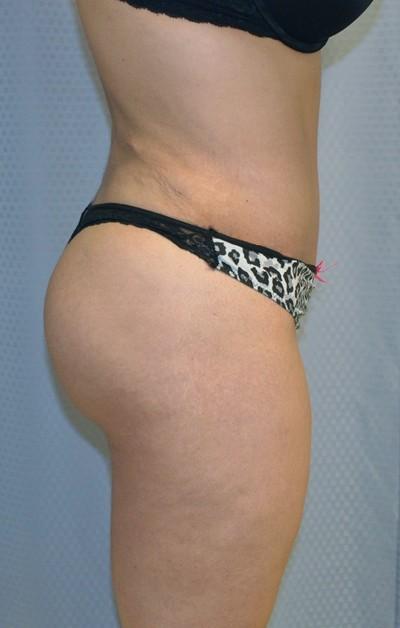 buttock-augmentation-brazilian-butt-lift-upland-woman-after-side-dr-maan-kattash