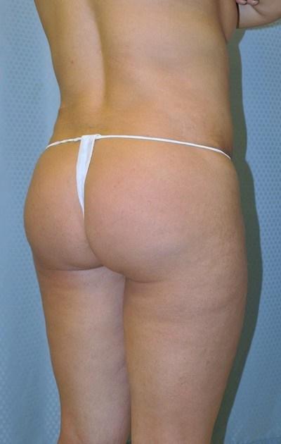 buttock-augmentation-brazilian-butt-lift-upland-woman-before-back-dr-maan-kattash