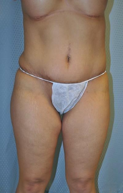 buttock-augmentation-brazilian-butt-lift-upland-woman-before-front-dr-maan-kattash