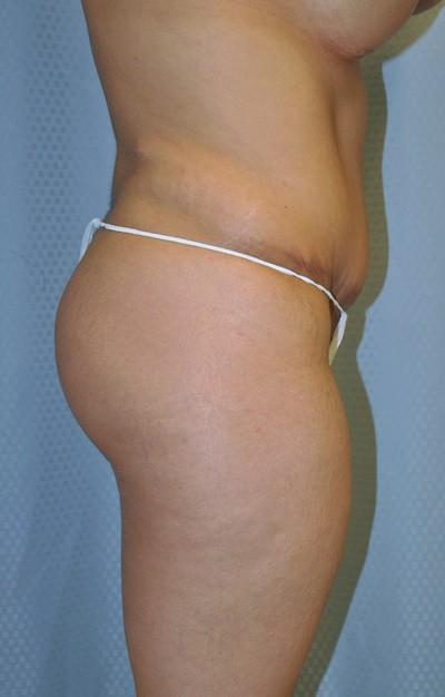 buttock-augmentation-brazilian-butt-lift-upland-woman-before-side-dr-maan-kattash