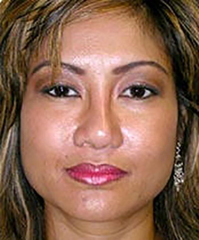 chin-augmentation-cheek-plastic-surgery-rancho-cucamonga-woman-after-front-dr-maan-kattash-2
