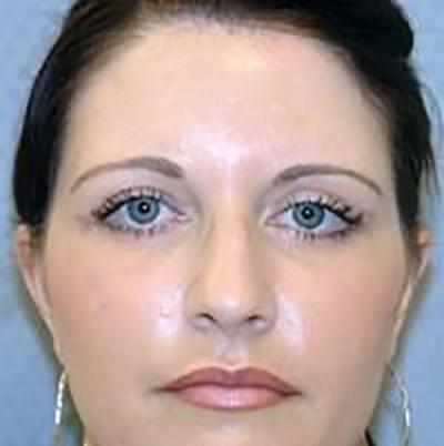 eyelid-lift-blepharoplasty-plastic-surgery-los-angeles-woman-after-front-dr-maan-kattash