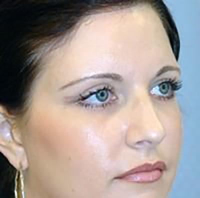 eyelid-lift-blepharoplasty-plastic-surgery-los-angeles-woman-after-oblique-dr-maan-kattash