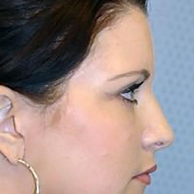 eyelid-lift-blepharoplasty-plastic-surgery-los-angeles-woman-after-side-dr-maan-kattash