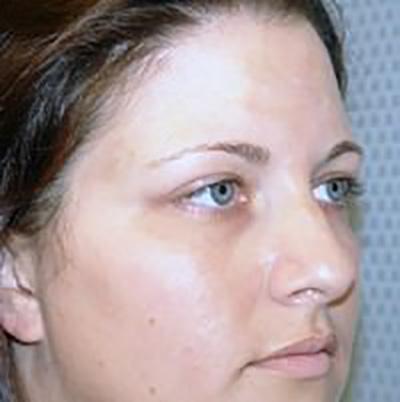 eyelid-lift-blepharoplasty-plastic-surgery-los-angeles-woman-before-oblique-dr-maan-kattash