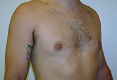 gynecomastia-male-breast-reduction-surgery-ontario-after-oblique-dr-maan-kattash