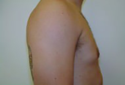 gynecomastia-male-breast-reduction-surgery-ontario-after-side-dr-maan-kattash