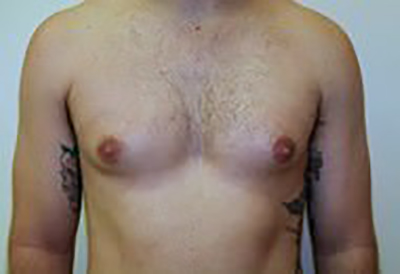 gynecomastia-male-breast-reduction-surgery-ontario-before-front-dr-maan-kattash
