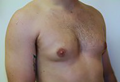 gynecomastia-male-breast-reduction-surgery-ontario-before-oblique-dr-maan-kattash