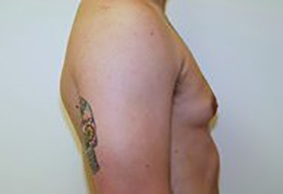 gynecomastia-male-breast-reduction-surgery-ontario-before-side-dr-maan-kattash