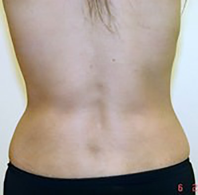 liposuction-plastic-surgery-beverly-hills-woman-woman-after-back-dr-maan-kattash